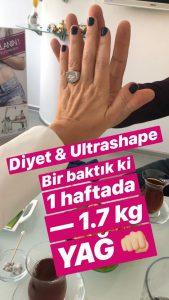 Ultrashape ve diyet ile yağ yakımı paylaşımı