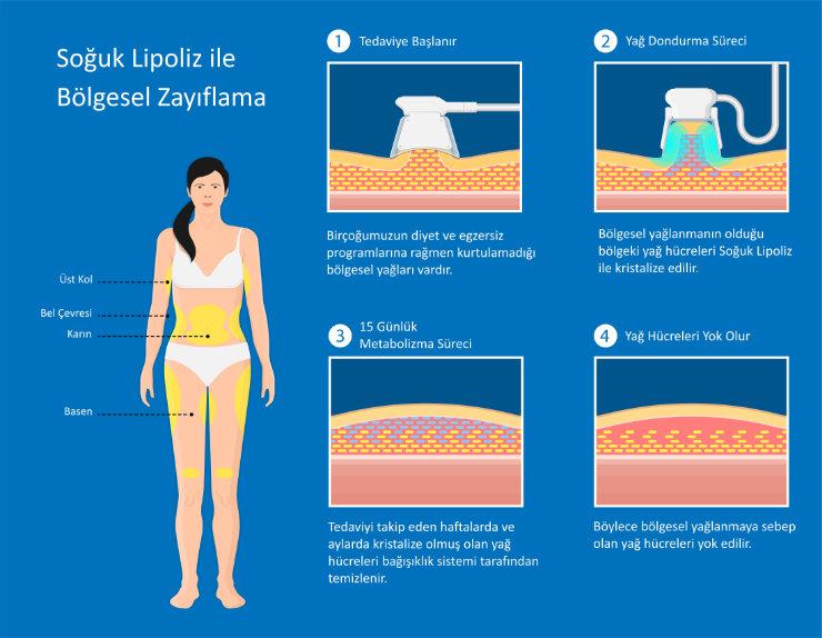 Ankara'da Soğuk Lipoliz ile Yağ Yakımı